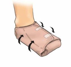 Eclypse Foot - (5 St) - PZN 07049765